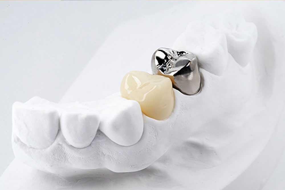 銀歯の虫歯リスク