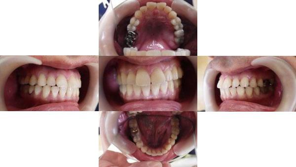 出っ歯のインビザライン治療例(40歳女性 治療期間10ヶ月)