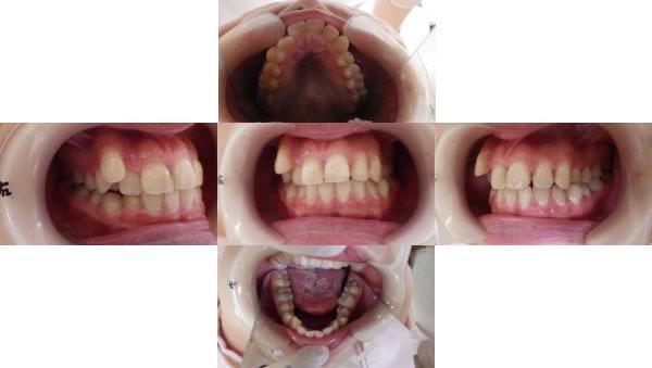 八重歯のインビザライン治療例(31歳女性 治療期間1年3ヶ月)