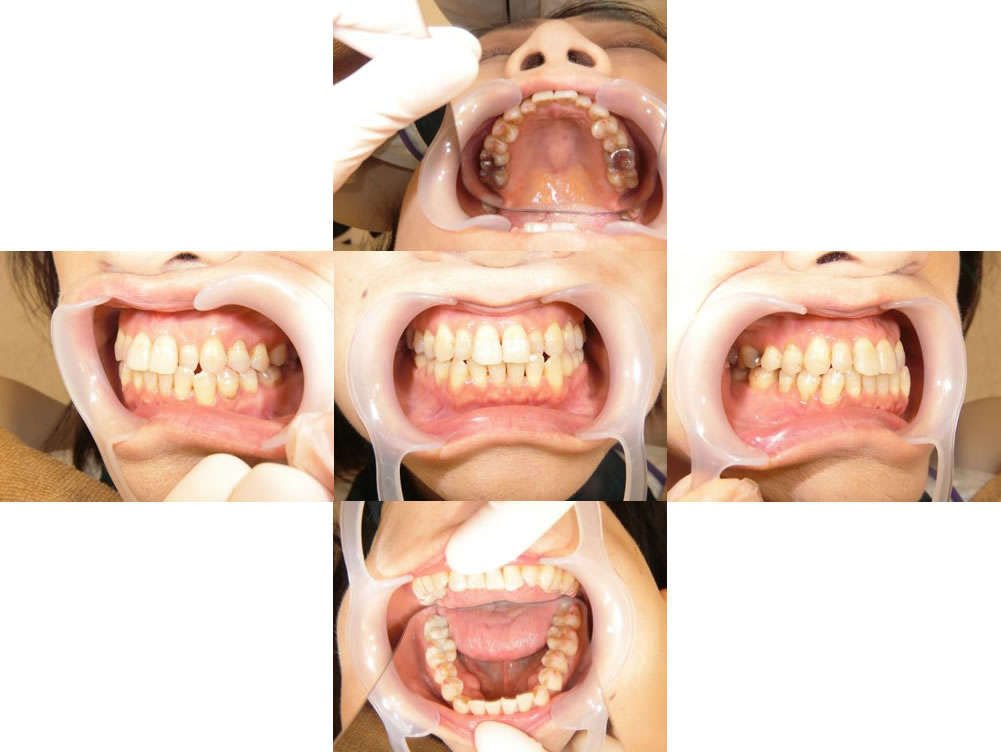インビザラインによる前歯の部分矯正治療例(50代歳女性 治療期間7ヶ月)