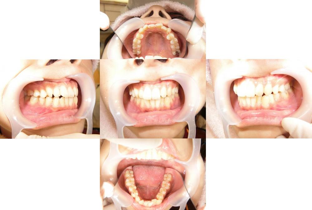 インビザラインによる前歯の部分矯正治療例(28歳女性 治療期間7ヶ月)