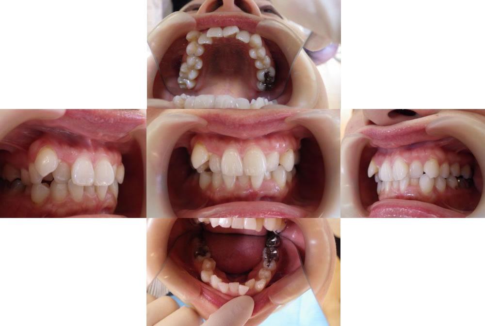 叢生のインビザライン治療例(44歳女性 治療期間2年3ヶ月)