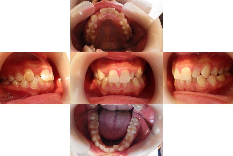 八重歯のインビザライン治療例(21歳女性 治療期間12ヶ月)