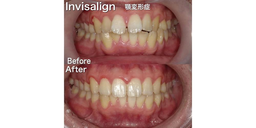 叢生/出っ歯などのインビザライン治療例(治療期間:1年3ヶ月/男性)|浦和もちまる歯科・矯正歯科クリニック出っ歯(上顎前突)の症例一覧