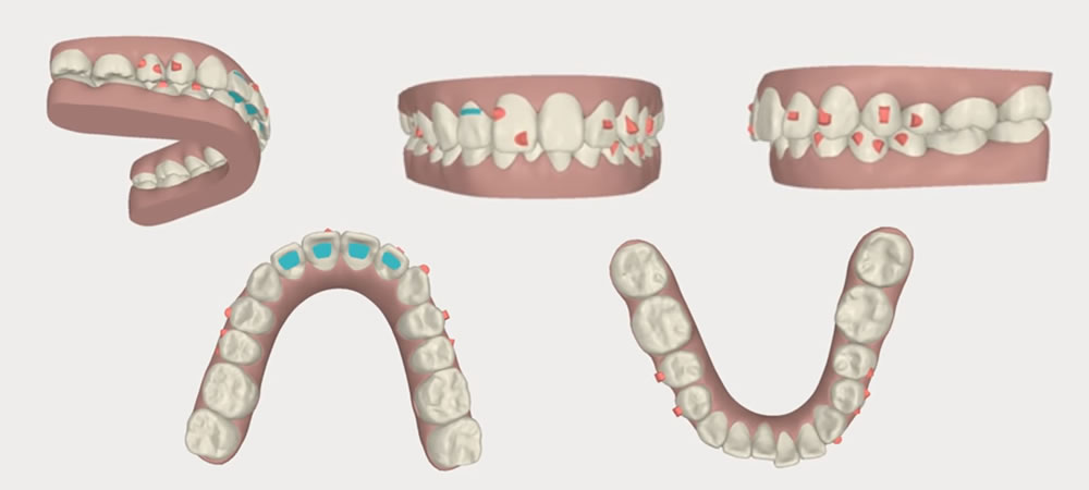 抜歯しない歯列矯正