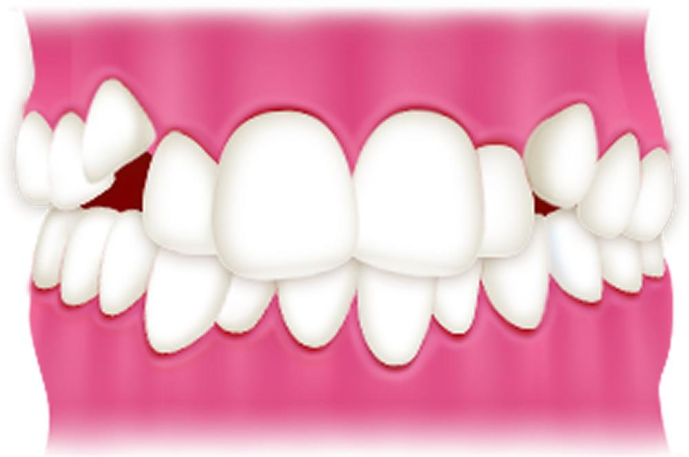 軽い八重歯