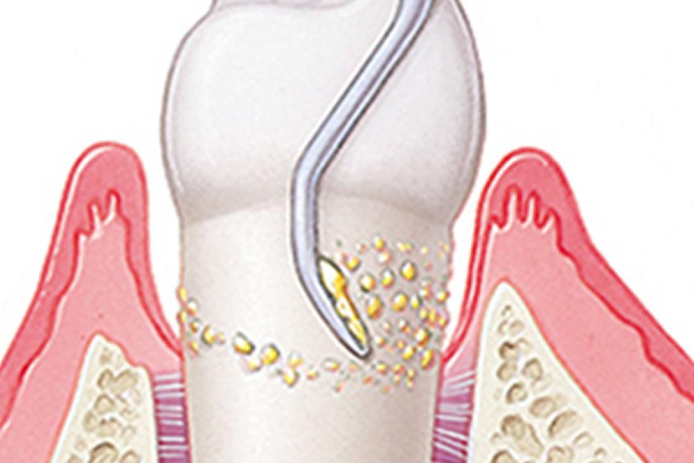 歯周病症状が中度の場合