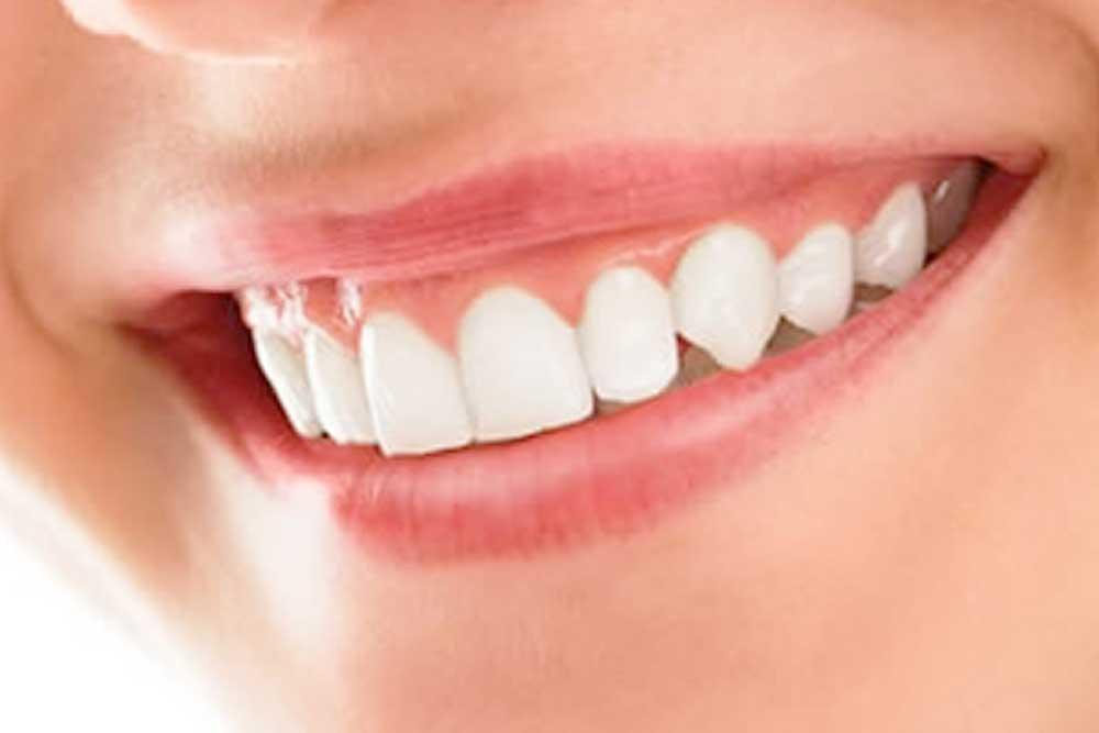 歯ぐきのホワイトニング